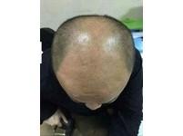 糖尿病「血糖失控」近全禿 他靠「胰島素治療」冒黑髮