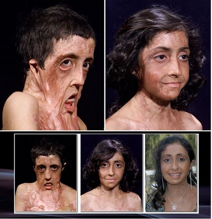 燃煤爆炸毁容 印度女孩浴火重生 长大要当医生助人图片