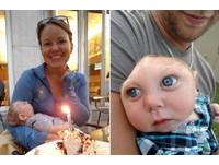 天生沒有大半個頭顱 佛州大眼弟弟奇蹟過1歲生日了!