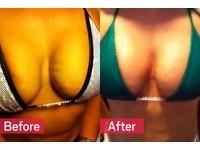 自己胸部自己救! 美發明「吸血鬼豐胸法」