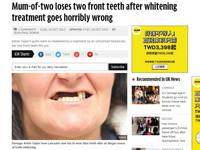 歐賣尬!英女去做牙齒美白 術後卻變「哈買兩齒」