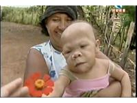 巴西不老女嬰 身心靈意外停滯30年