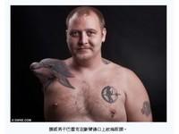 右肩變「海豚」 挪威斷臂男不再嫌醜