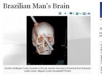 鋼筋插頭穿眉心 巴西男「不痛」奇蹟生還