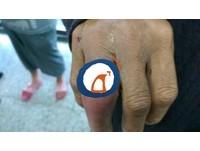 慎入!台東男搬重物戒指變形 手指超腫發紫差點截肢