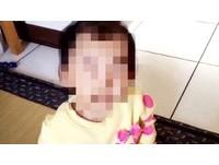 手滑?台中1歲女童疑遭虐顱內出血 保母凌晨收押