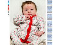 爸媽在情人節創造她 小baby額頭卻出現「愛心胎記」