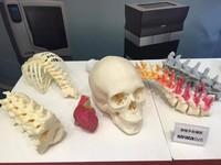 65歲翁膝蓋爛 「3D列印骨水泥關節」讓他免躺床3個月