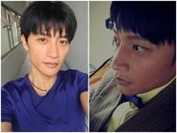 陳志朋臉部50%燒傷舊照曝光 「當時真勇敢」
