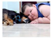 5歲童重80公斤 巴西「小胖威利」隨時會死
