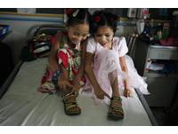 強震各失去左右腳 尼泊爾「單腳女孩」合穿一雙鞋