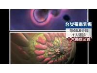 每「46分鐘」一人罹乳癌 台灣患者年齡比歐美年輕10歲