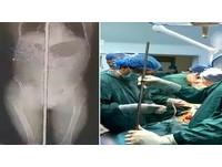 工人墜落 1.5米鋼筋貫穿陰囊到頭部!醫師7小時取出