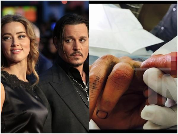 有照/強尼戴普暴走割斷手指 用「血書控訴」老婆外遇