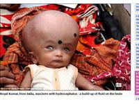 頭脹3倍大...男嬰遭父母遺棄 善心親戚散盡家財收養他