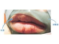 打玻尿酸豐唇竟長「疱疹」 唇周圍手術恐讓免疫力下降