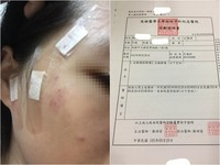 港女大生來台「恐怖室友」毆打?男友嚇:內衣沒穿被趕出門