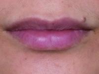 薄唇=薄情?新型凝膠式玻尿酸給妳性感爆表ㄉㄨㄞㄉㄨㄞ唇