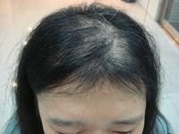 20歲女生落髮變成「阿姨」 看診難過到哭出來!