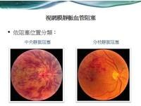 視網膜靜脈阻塞治療曙光 多款藥物健保開始給付