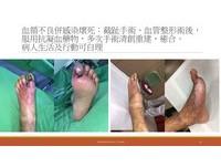 62歲糖尿男子逆轉不截肢 安南醫院3年搶救440隻腳