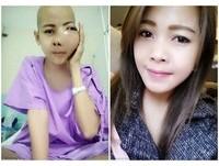 泰國正妹長惡性腫瘤 左臉扭曲變形被嘲笑