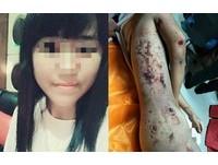 濟南女大生校內「全裸墜樓」 瘀青傷痕布滿屍體