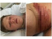 脖子拉出「耳機銅線」!16歲男騎單車聽音樂 撞上刺網圍籬