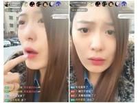 「南韓Nana」女主播打玻尿酸...直播「凍歪」下巴、嘴唇