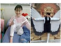 「我想跑但時間不多」19歲獨腿女劉芸華咳血:幫我捐眼角膜