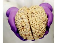 用「電擊療法」忘卻痛苦 科學家的記憶實驗成功了