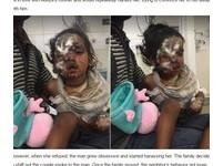 人妻拒追求 2歲兒遭綁架潑酸...半張臉融化塞垃圾桶哭