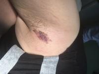 女腋下長紅斑誤認濕疹 竟罹罕見「乳房外柏德氏病」
