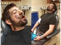 電子菸「炸開」!美國男痛失7顆牙 嘴裡滿滿碎片和鮮血