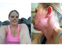 醫生私自植皮臉留「蜈蚣疤」 燒傷女崩潰不敢照鏡子