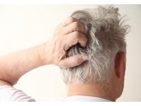 年紀輕輕就長白頭髮? 「4大原因」戳破你的健康狀況