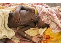 南蘇丹飢荒500萬人兩眼無神、露肋骨 7月將達高峰期