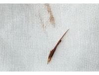 2.5cm魚刺卡肛門一周 廣東男皮膚淤黑壞死還流膿!