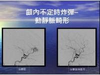 動靜脈畸形 易造成腦損傷及中風