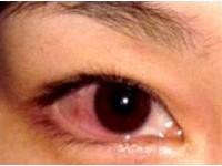 眼睛好紅好癢 當心是傳染力極高的紅眼症