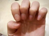 指甲「月牙」至少看到6片才健康? 皮膚醫:沒影啦!