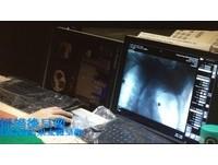 「胸口勾針」等手術驚又痛 長庚找到早期肺癌治療新招