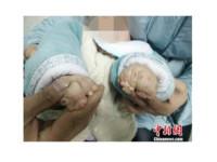 中國3歲16指「鏡影手」女童 術後心願:想畫畫