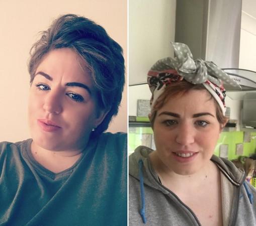 ▲▼英國的溫斯頓(Kirsty Weston)用「獨角獸染髮劑」(Unicorn Hair)後,導致擁有禿頭。(圖/翻攝自Kirsty Weston臉書)