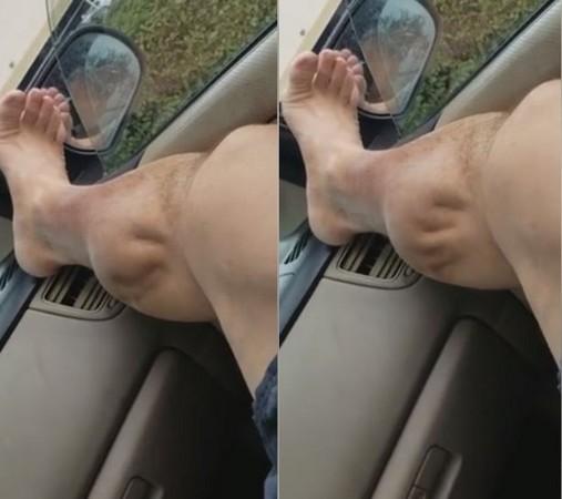 ▲▼ 加州一名男子運動完後,小腿突然抽筋,肌肉瘋狂地收縮、抽蓄。(圖/翻攝自臉書/Angel Bermudez)