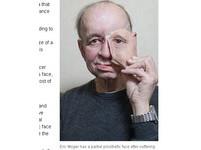 3D列印術印出臉皮 半臉男獲新生