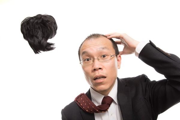 顶上无毛!医分析3大掉发原因...「雄性秃」做这件事下场更惨