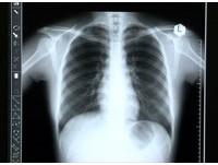 健檢看漏惡性胸腺瘤 法院判醫師賠521萬