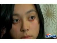 智利「血淚女孩」 正妹疑罹患罕見淚血症