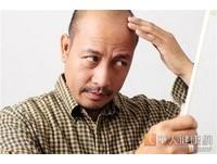 禿髮是遺傳? 醫:爸爸禿頭,你可以只是輕微掉髮